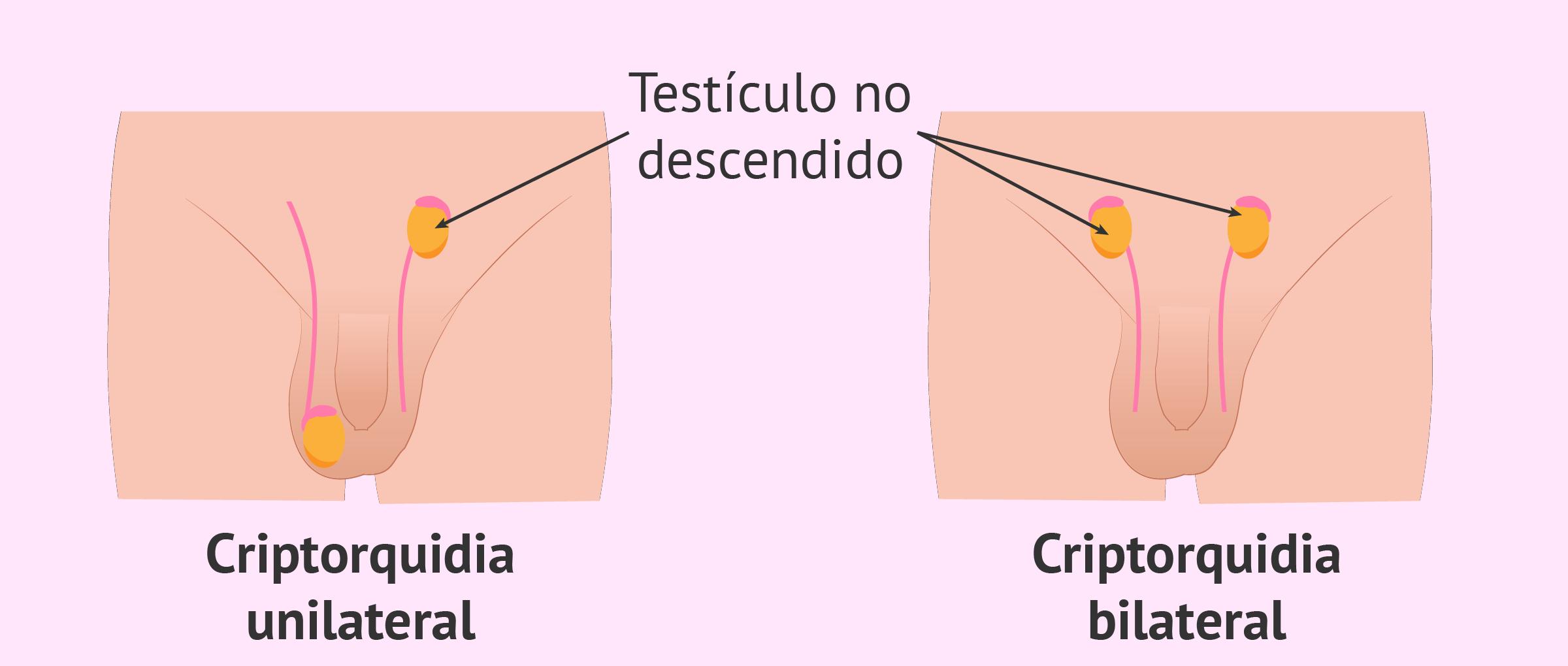 puedes tener una erección sin testículos