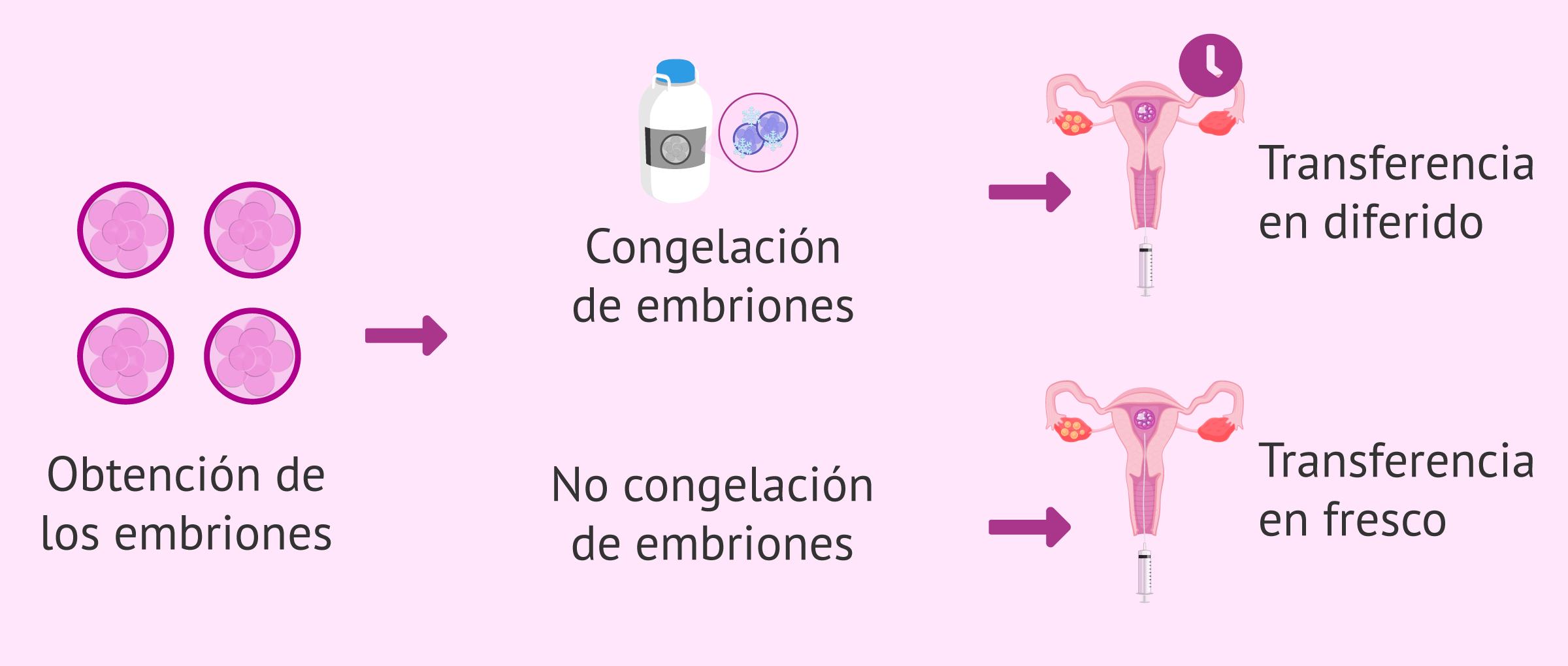 Modelos de transferencias embrionarias