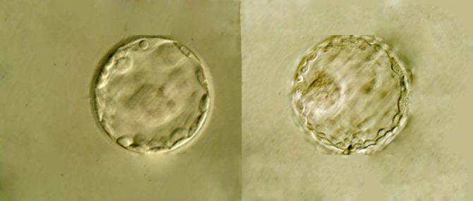 Imagen: Cultivar los embriones hasta blastocisto
