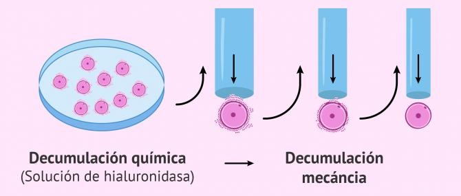 Imagen: Decumulación de óvulos