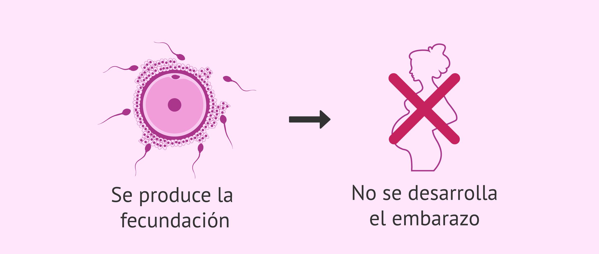 Ilustración de infertilidad