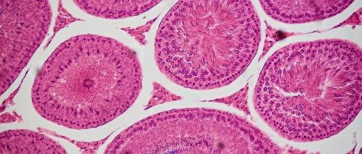 Túbulos seminíferos en azoospermia