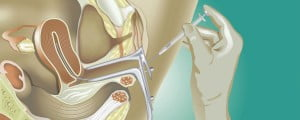 Introducción de espermatozoides en el útero