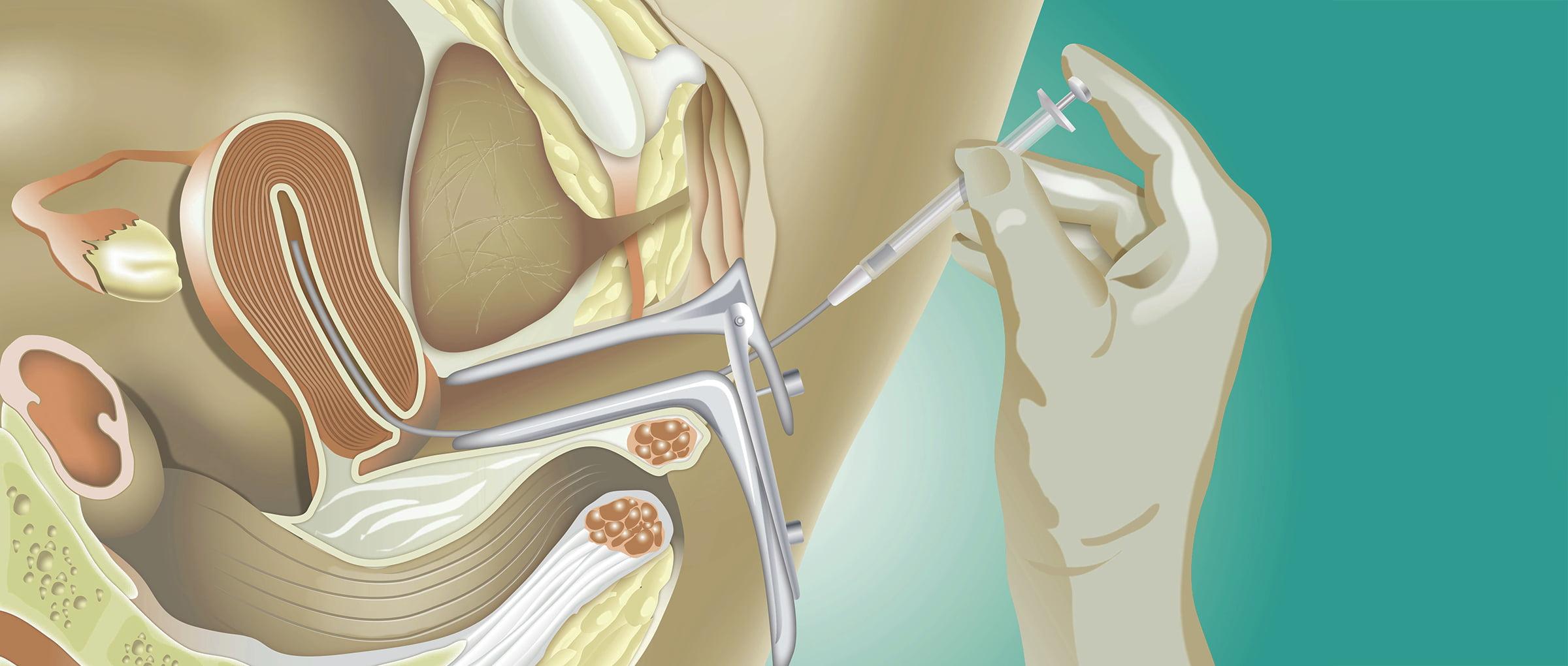 Introducción del semen en el útero femenino