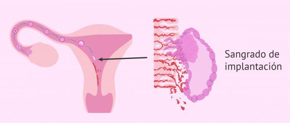 Imagen: Desarrollo embrionario y sangrado de implantación