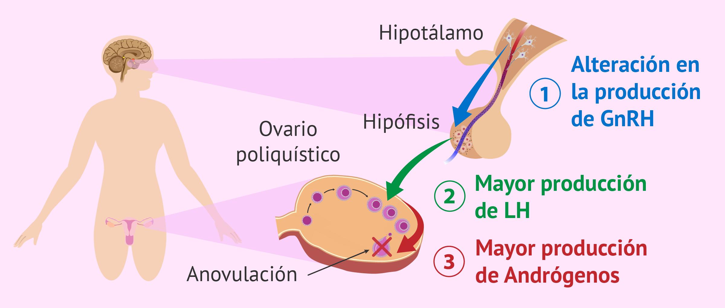 Desorden hipotalámico causante de SOP
