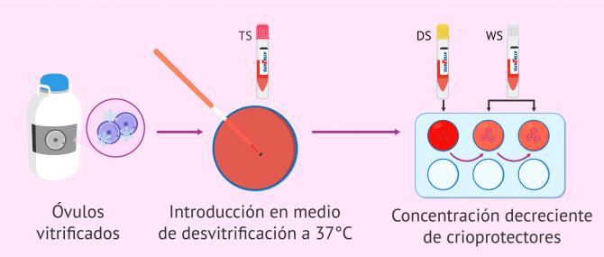 Imagen: Proceso de desvitrificación de los óvulos