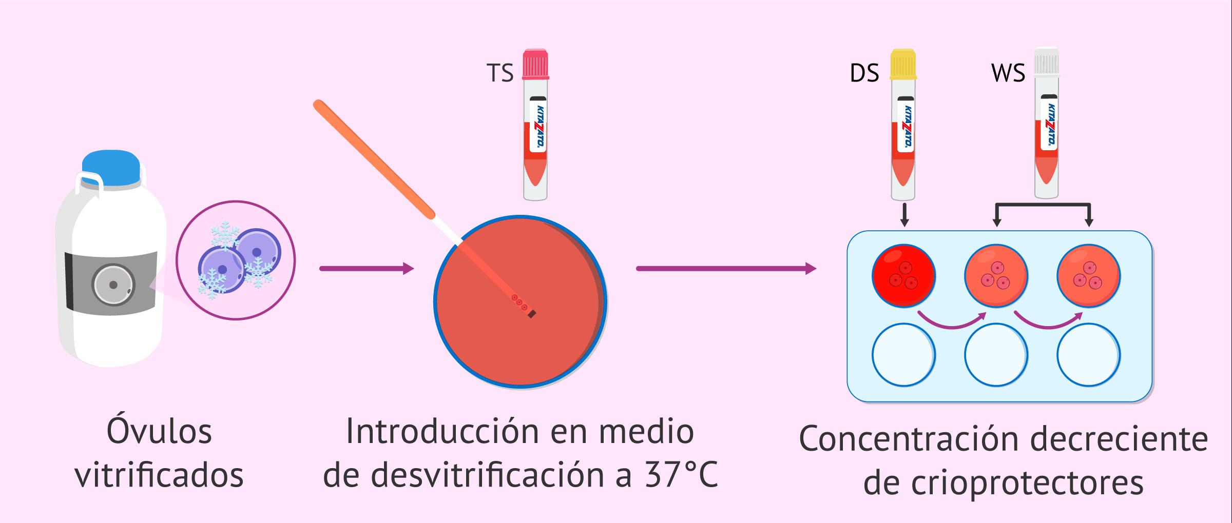 Proceso de desvitrificación de los óvulos