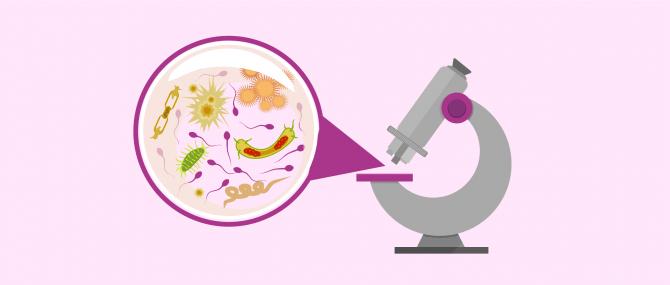 Imagen: Cultivo de semen en el diagnóstico de la prostatitis