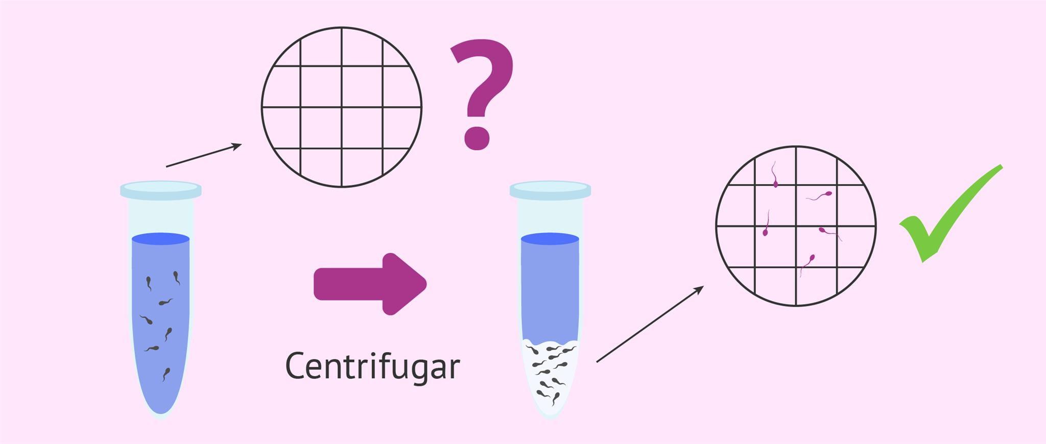 Centrifugar la muestra para diagnosticar la criptozoospermia