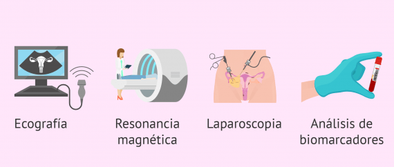 Cómo se diagnostica la endometriosis