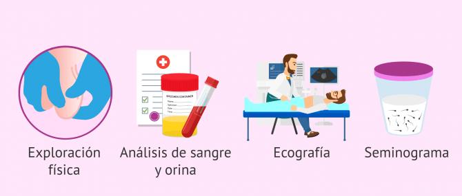 Imagen: Pruebas diagnósticas para la epididimitis