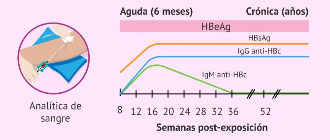 Imagen: Marcadores para el diagnóstico de la hepatitis B