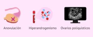 Criterios de Rotterdam: anovulación, hiperandrogenismo y ovarios poliquísticos
