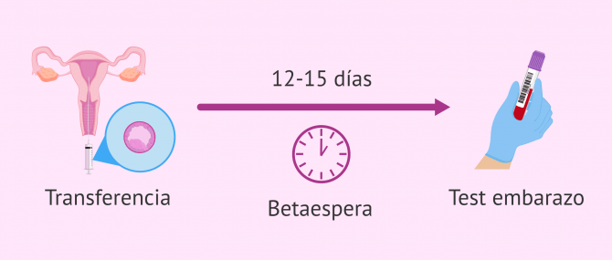 Imagen: Periodo de betaespera