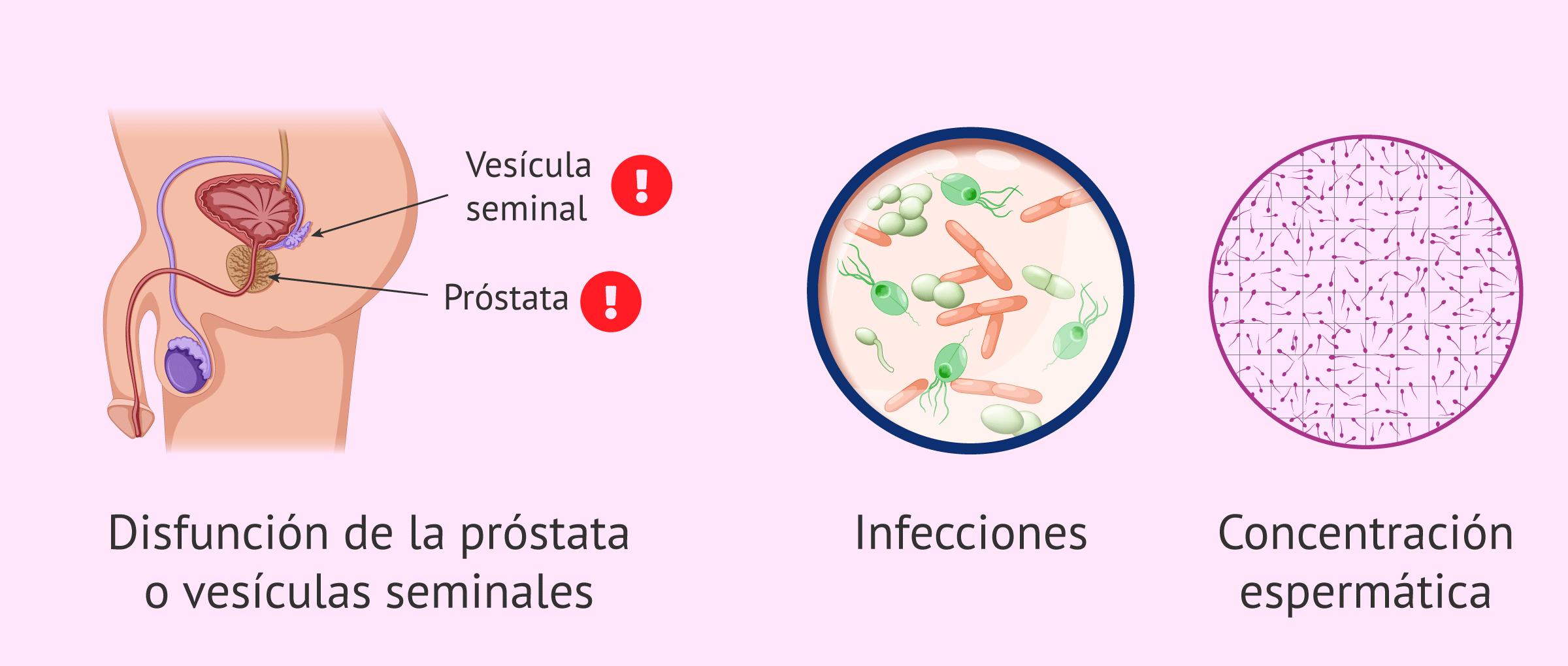 Causas de variación en la consistencia del esperma