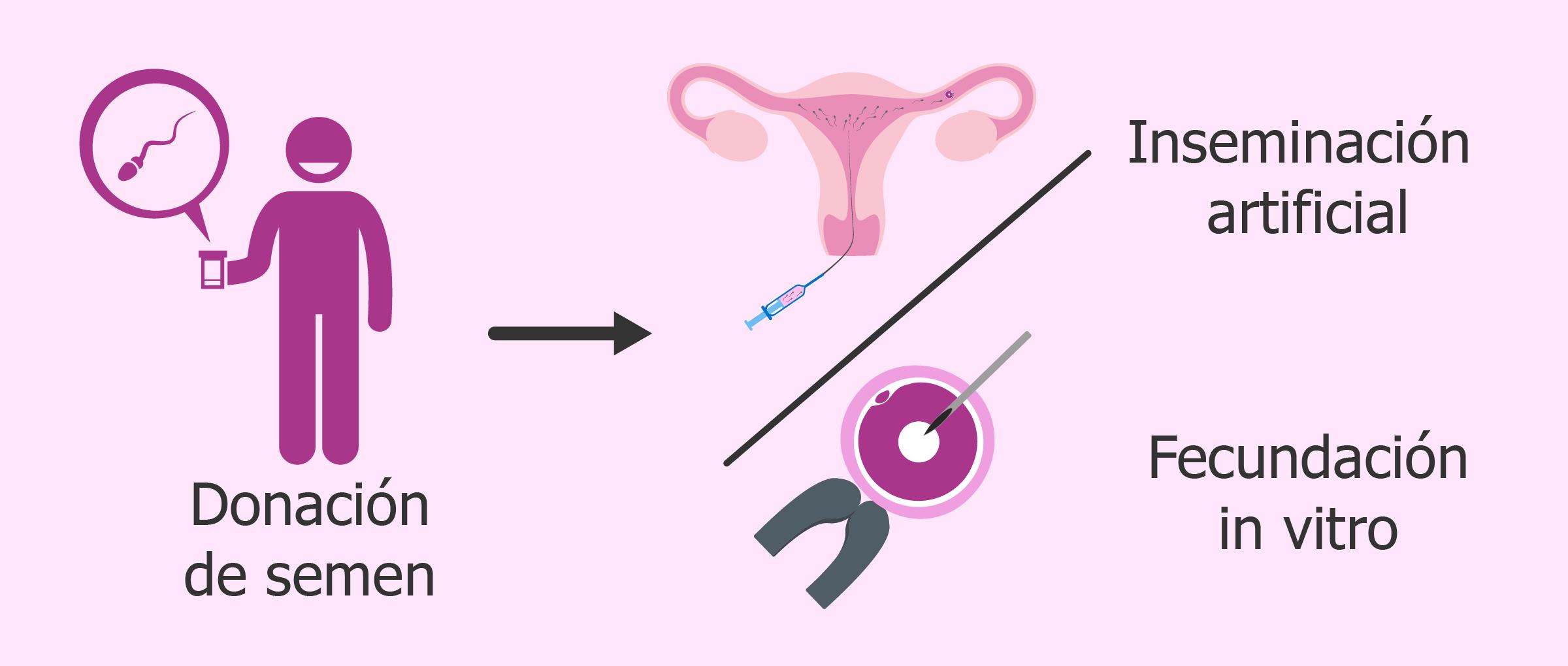 Donación de semen para inseminación artificial o para FIV