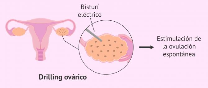 Imagen: Drilling ovárico para perforar el ovario