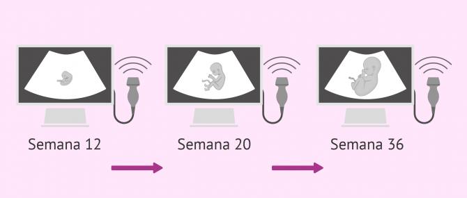 Imagen: Ecografías fetales