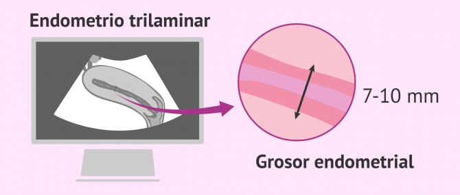 Imagen: Ecografía para ver el endometrio