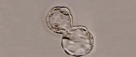 Fragmentación embrionaria