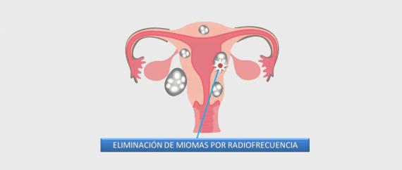 Imagen: Eliminación de miomas por radiofrecuencia
