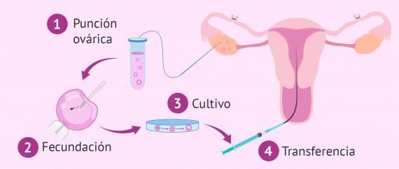 Imagen: FIV con ligadura de trompas