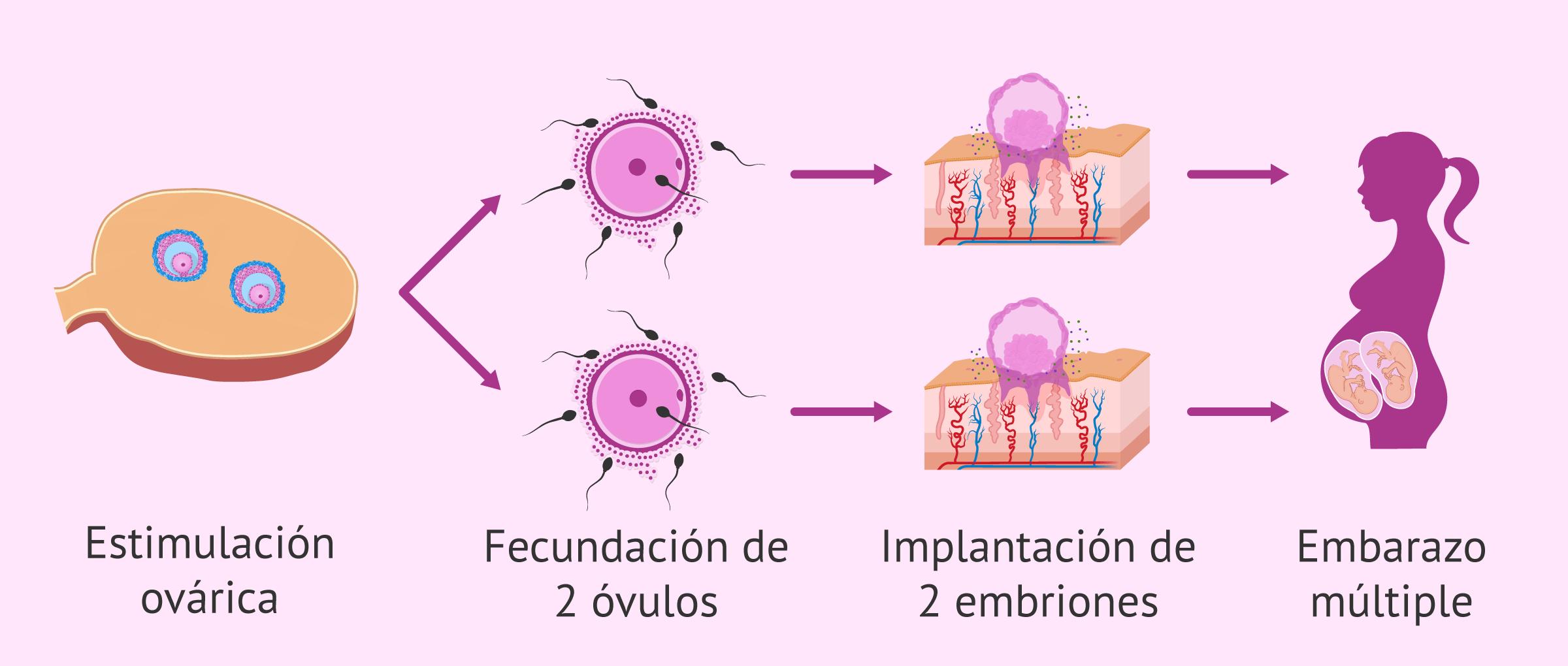 Embarazo múltiple por inseminación artificial (IA)