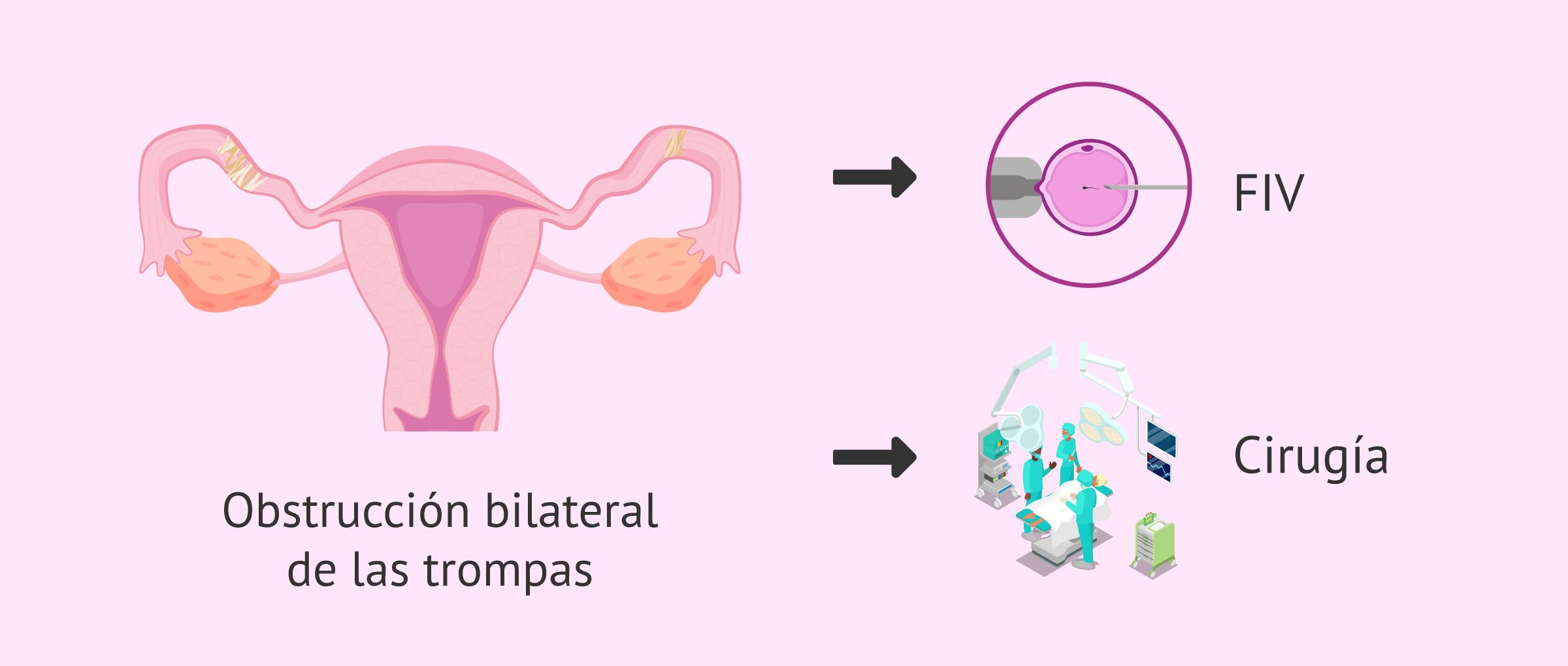 Embarazo con obstrucción tubárica bilateral