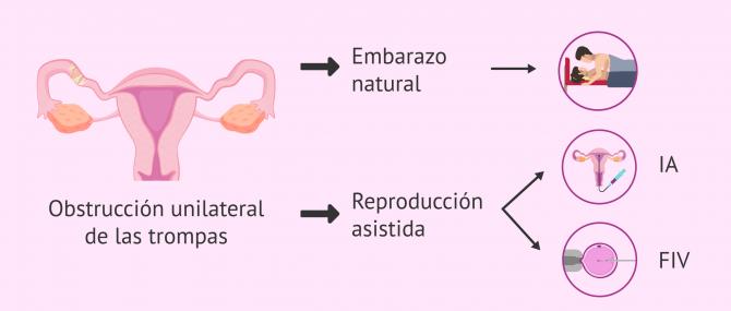 Imagen: Embarazo con obstrucción tubárica unilateral
