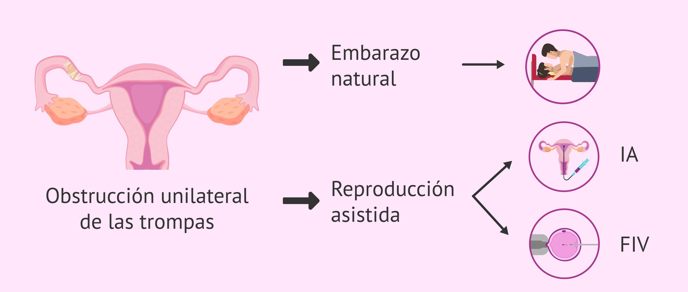 Embarazo con obstrucción tubárica unilateral