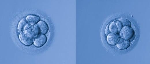 Ayuda entre los embriones mellizos de una fiv