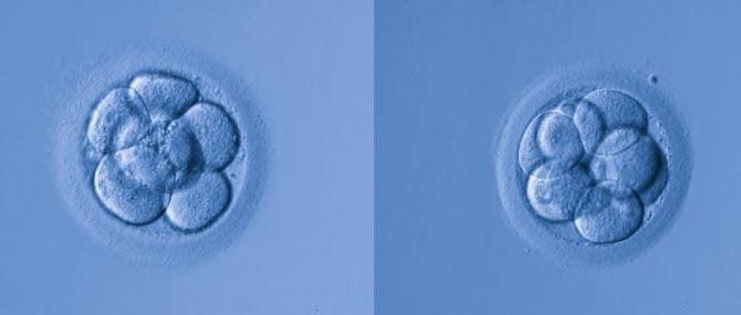 Imagen: Ayuda entre los embriones mellizos de una fiv