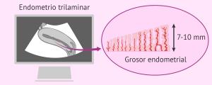 Endometrio trilaminar y con 7-10 mm de groso