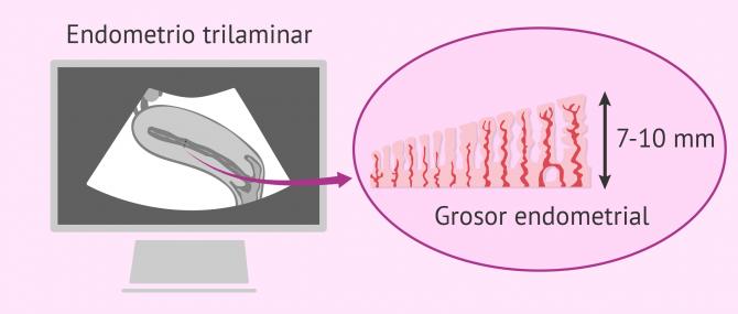 Preparación del endometrio para la transferencia de embriones