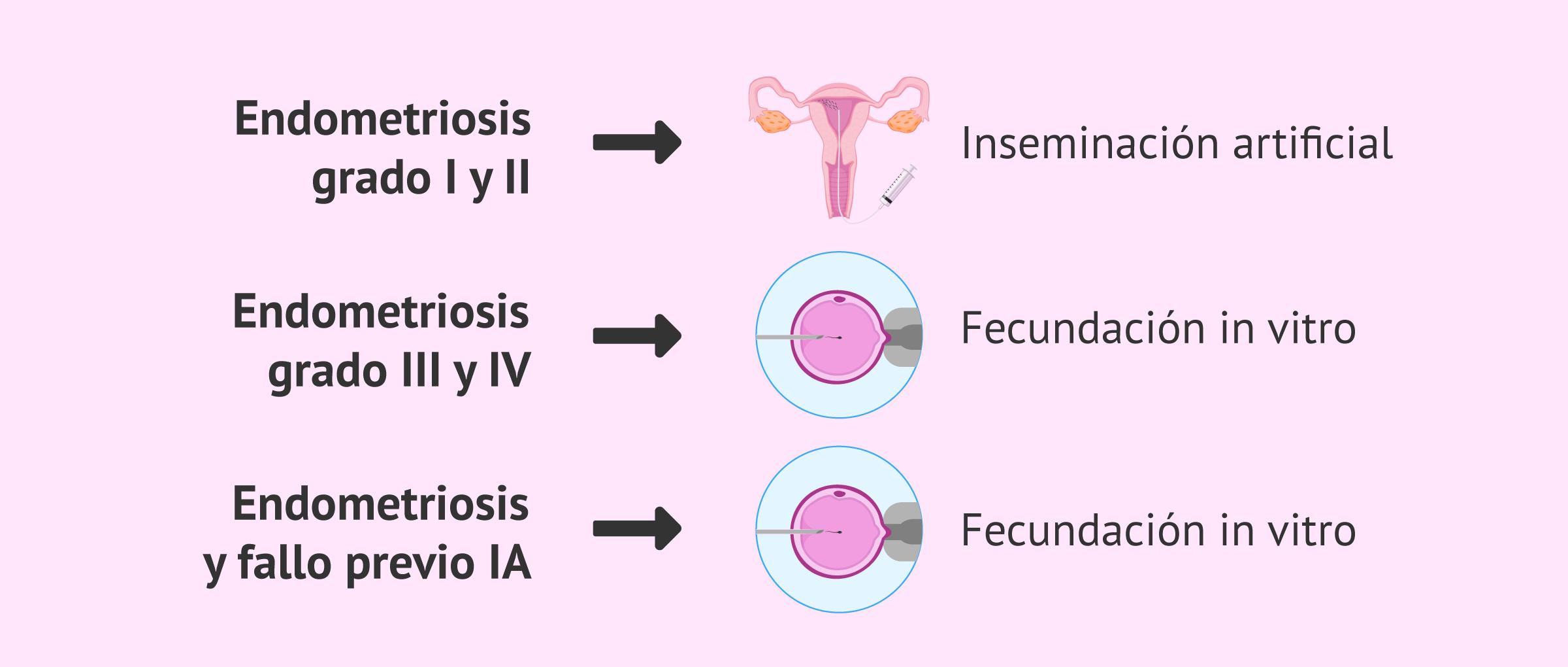 Endometriosis y tratamientos de fertilidad