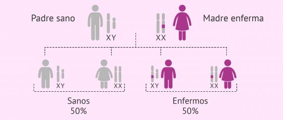 Imagen: Herencia de enfermedades ligadas al cromosoma X dominantes
