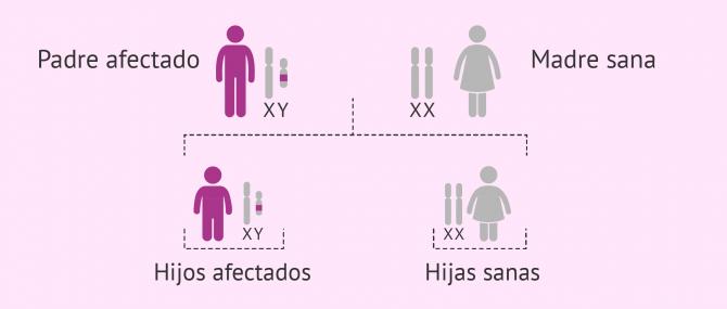 Imagen: Herencia de enfermedades ligadas al cromosoma Y