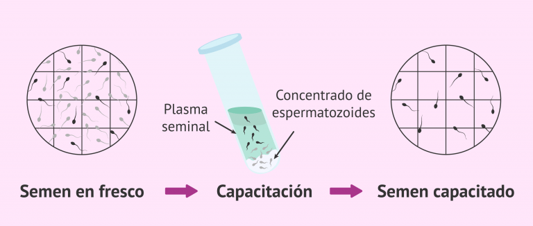 Recuento de espermatozoides progresivos