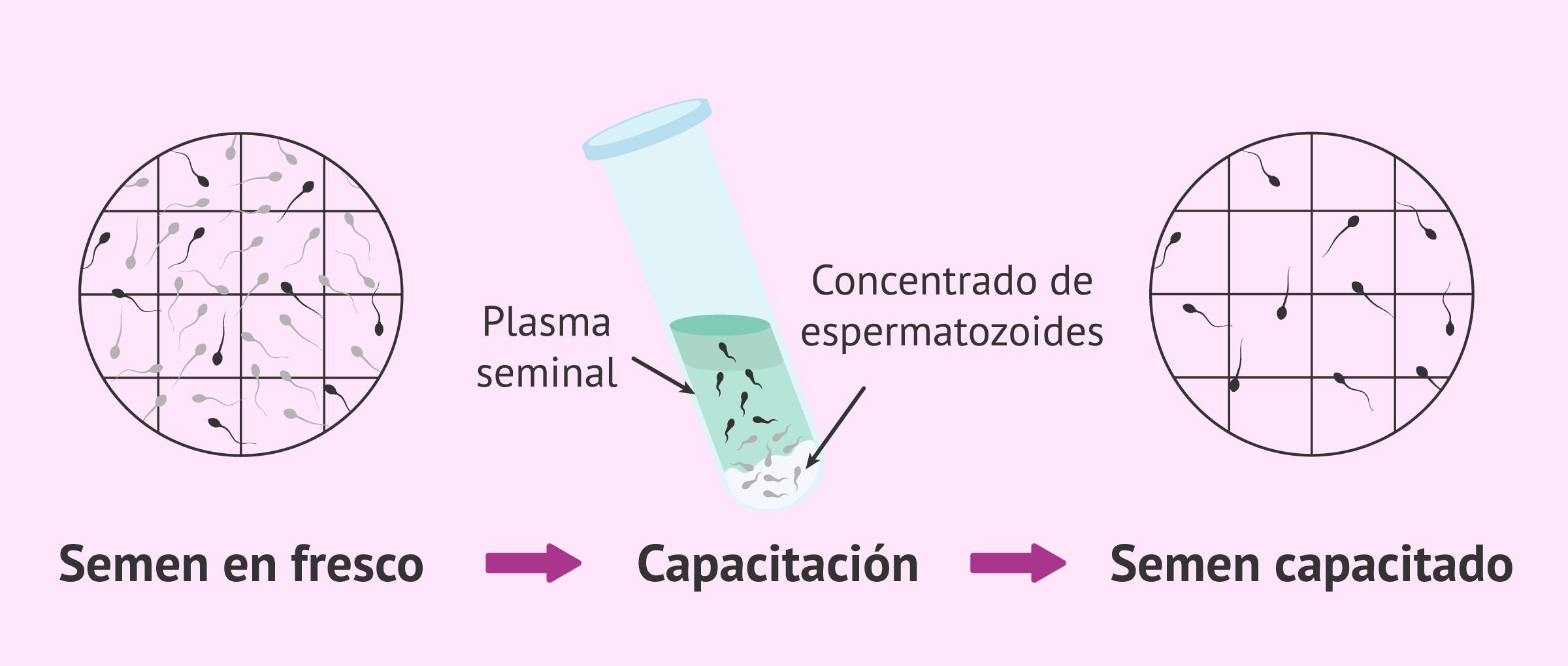 Seminograma con recuento de espermatozoides móviles (REM)