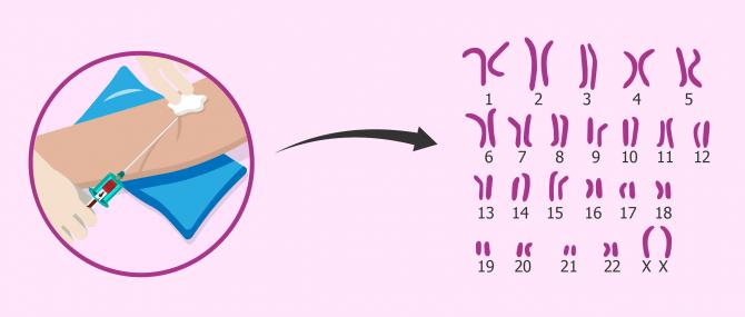 Imagen: Cariotipo para diagnosticar esterilidad de origen cromosómico