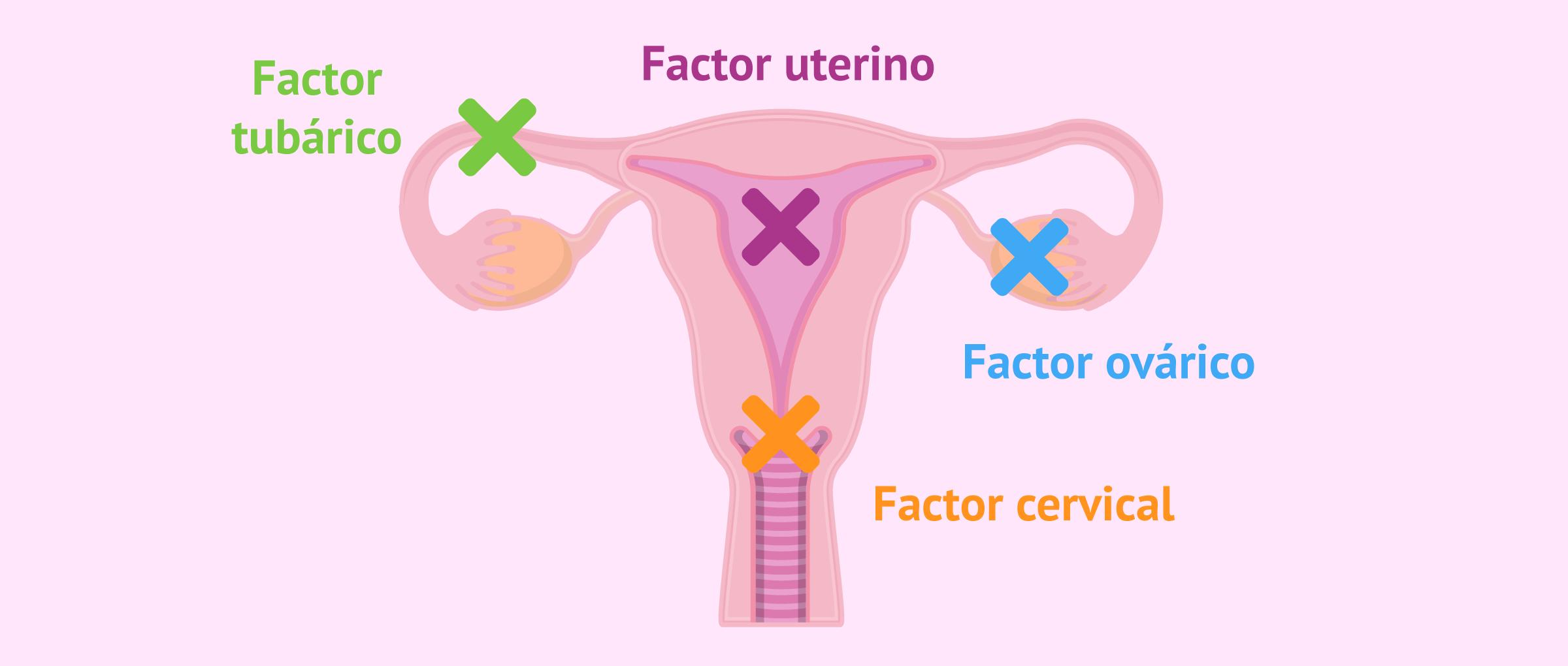 Origen de la esterilidad femenina