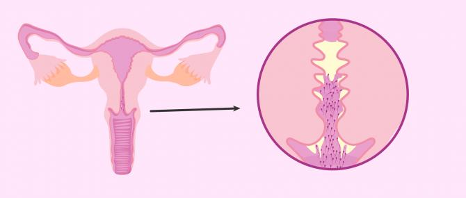 Imagen: Anticuerpos contra espermatozoides