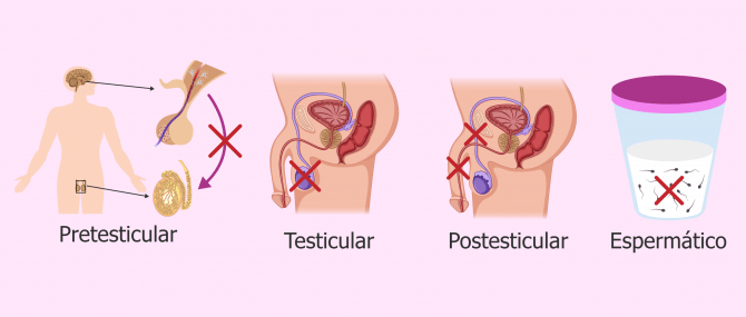 Imagen: Factores esterilidad masculina