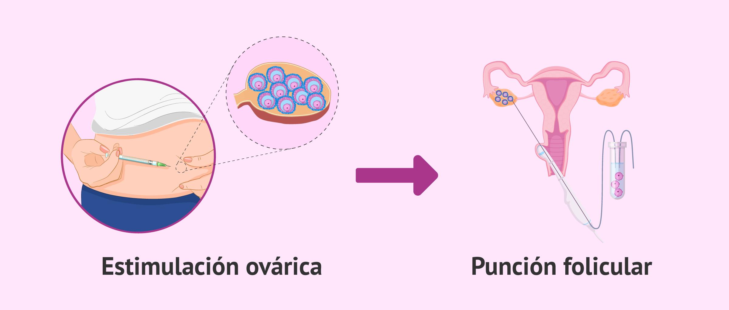 Punción folicular tras estimulación ovárica