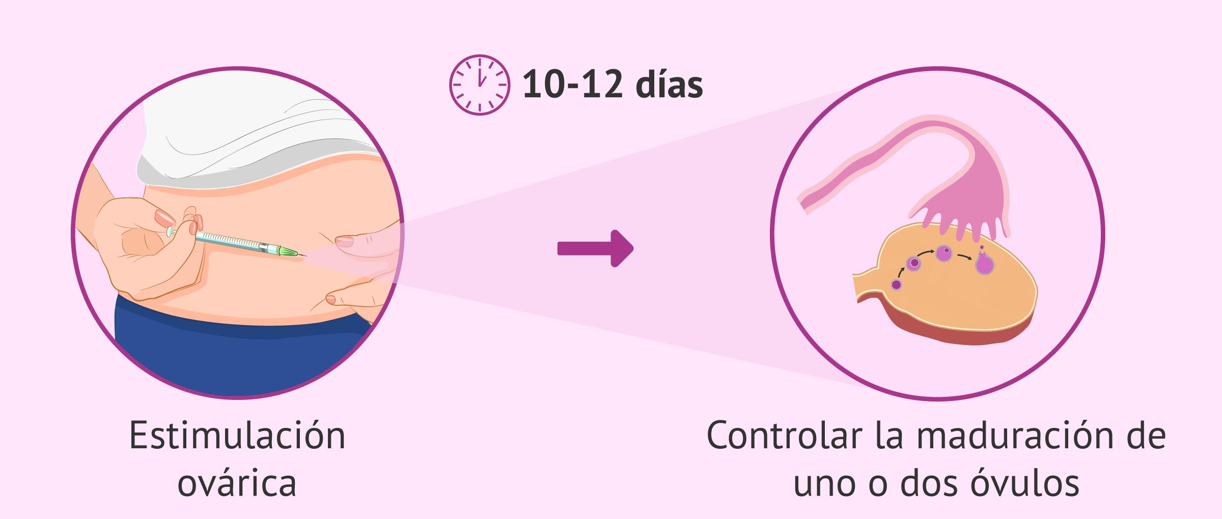 Estimulación ovárica para controlar la maduración de los óvulos