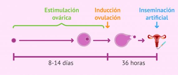 Imagen: La estimulación ovárica en inseminación artificial