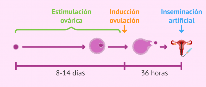 La estimulación ovárica controlada en una inseminación artificial