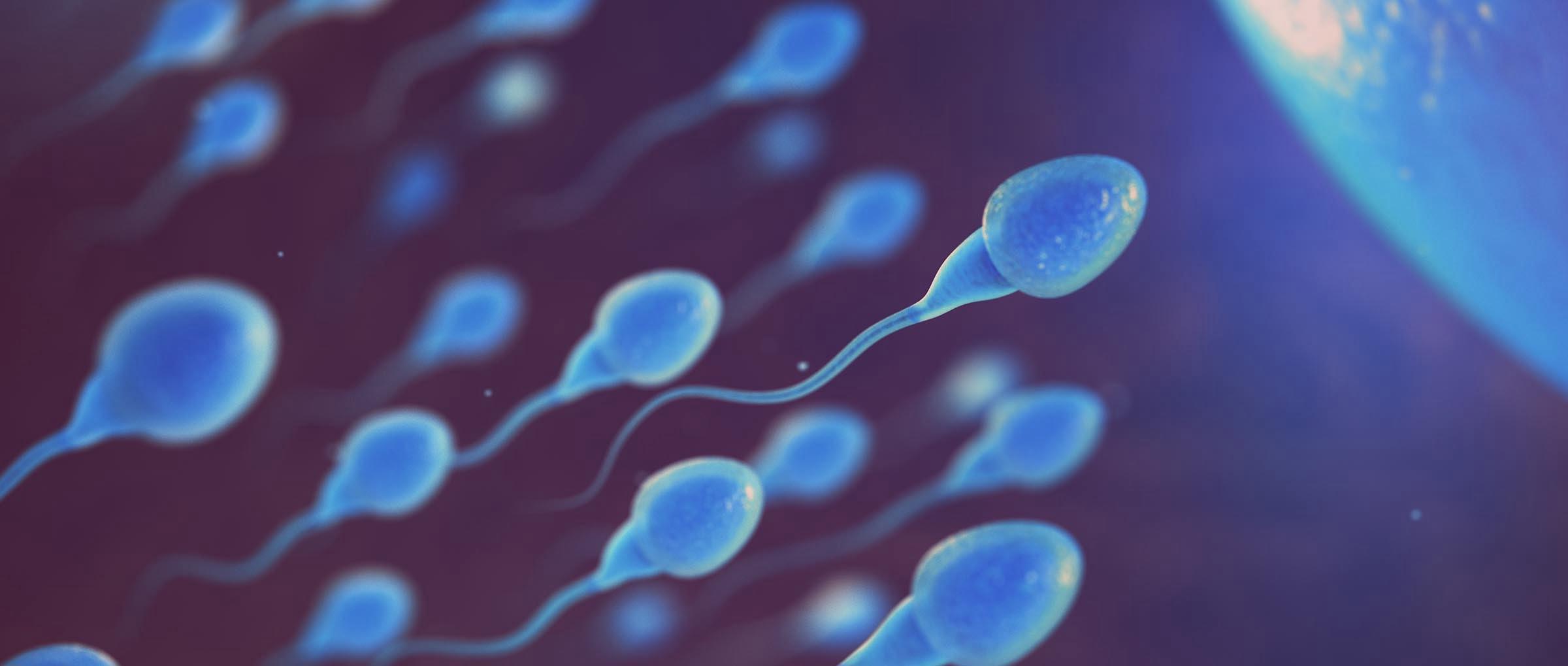 Un estudio analiza la relación del estrés oxidativo de los espermatozoides con las técnicas de reproducción IUI y ICSI.