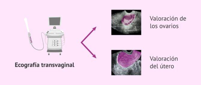 Imagen: Estudio ecográfico
